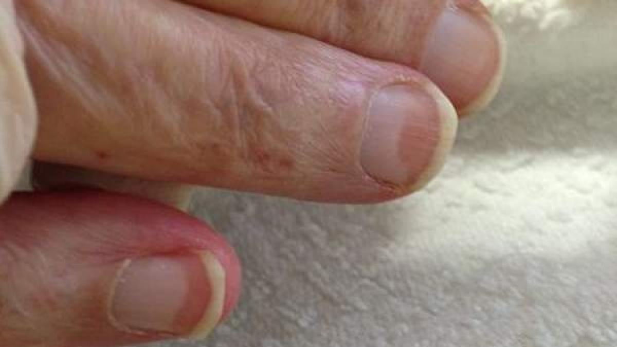 Las Manchas En Las Uñas Pueden Ser Un Aviso De Enfermedades Cutáneas U Orgánicas