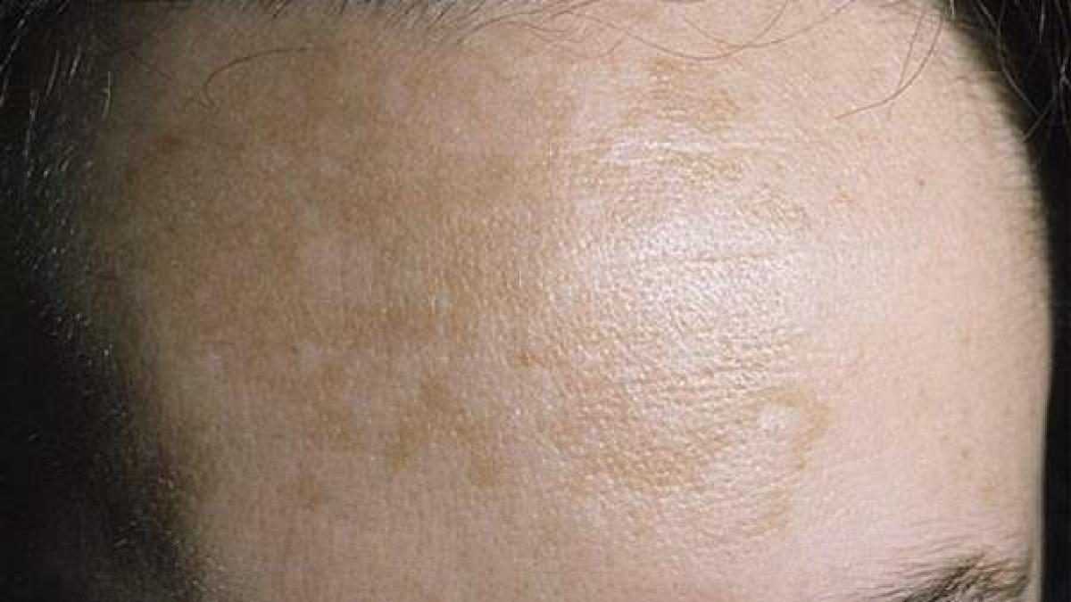 manchas rojas en la piel durante el embarazo