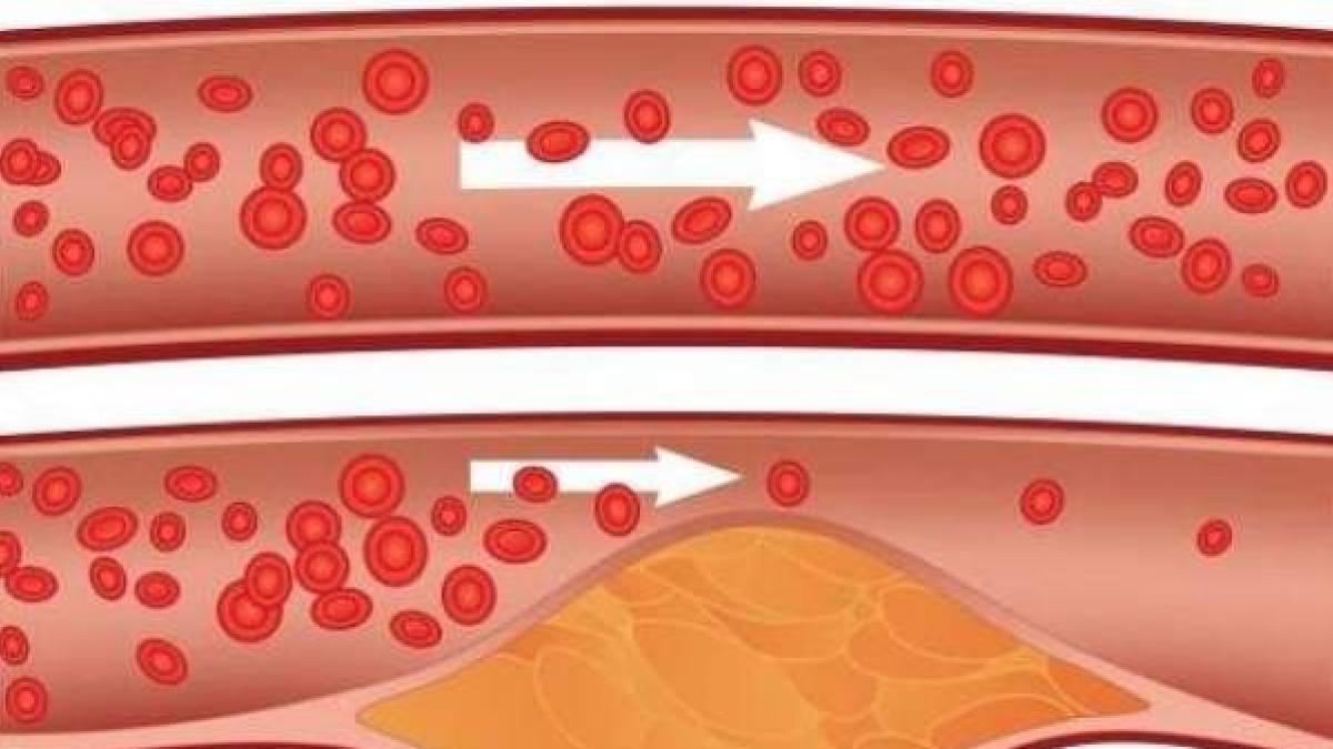 colesterol malo niveles normales