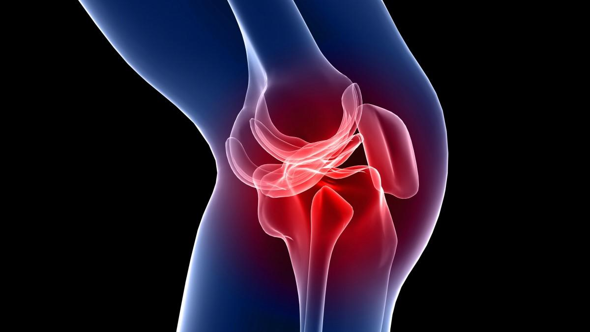 artrosis cartropatia
