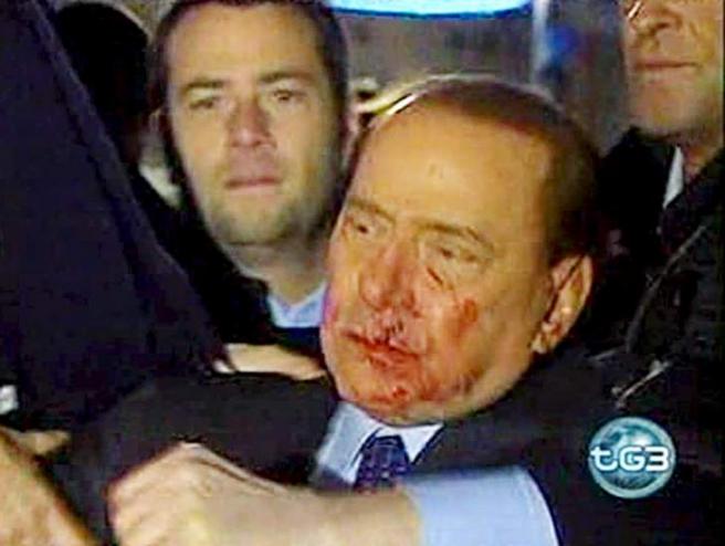 Este aspecto presentaba el exprimer ministro italiano cuando fue agredido por un joven con una estatuilla tras un mitin en la plaza del Duomo (Milan), el 13 de diciembre de 2009.