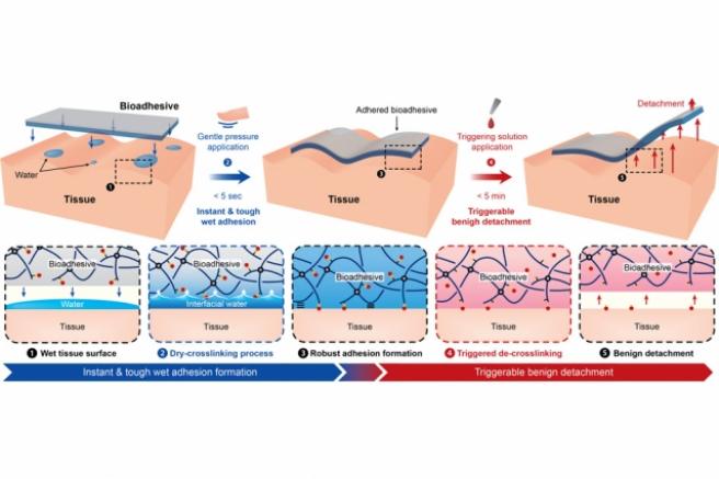 El adhesivo removible podría facilitar a los cirujanos el cierre de las heridas internas.