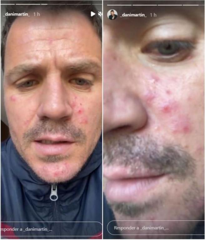 Dani Martín muestra los efectos de la rosácea en su piel.