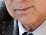 Doctor Ferrán Morell, experto en neumología.