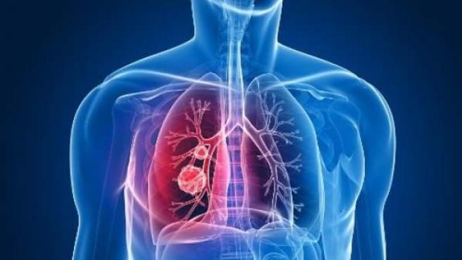 Recreación de los pulmones afectados de un enfermo con cáncer.