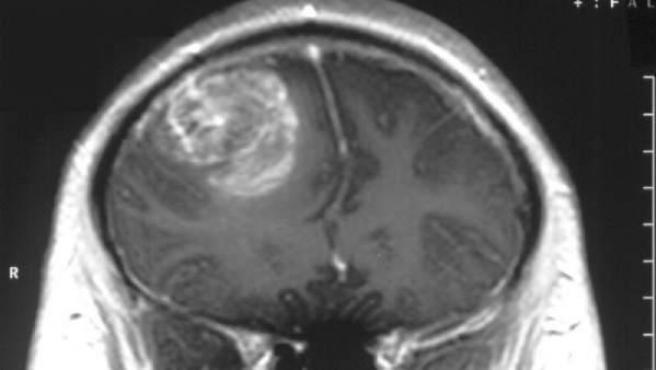 Imagen de un glioblastoma, el tumor cerebral más agresivo.