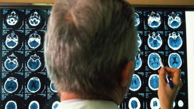 El alzhéimer es una enfermedad neurodegenerativa que se manifiesta como deterioro cognitivo y trastornos de la conducta.