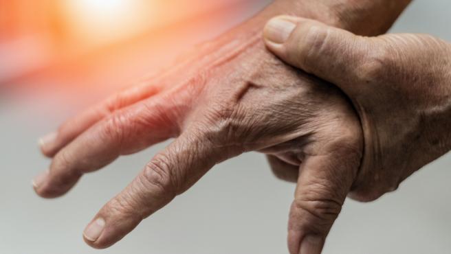 La artrosis afecta, sobre todo, a la articulación de la rodilla y a las manos.