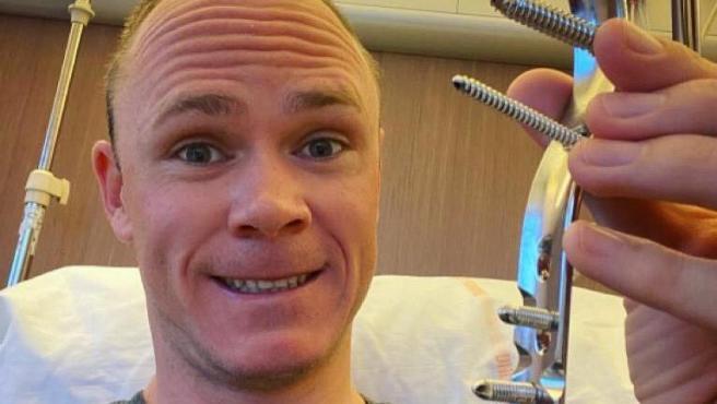 Chris Froome, con la prótesis retirada