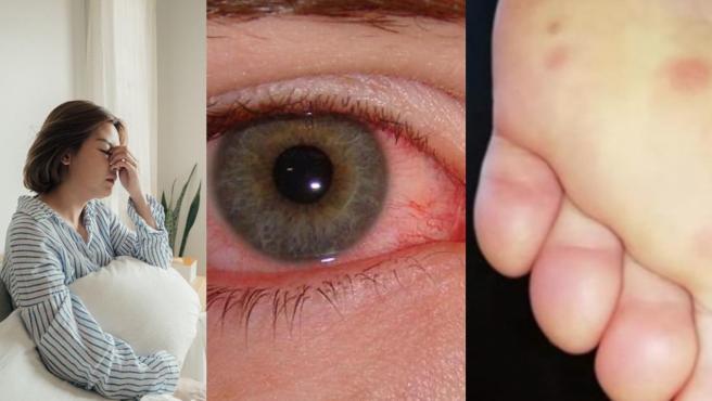 Posibles síntomas del coronavirus.