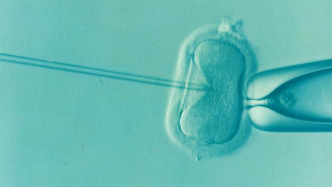Imagen de un tratamiento de fecundación in vitro