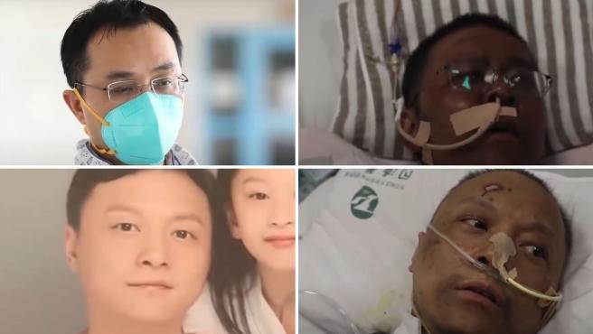 Dos médicos chinos despiertan del coma con la piel negra tras padecer coronavirus.