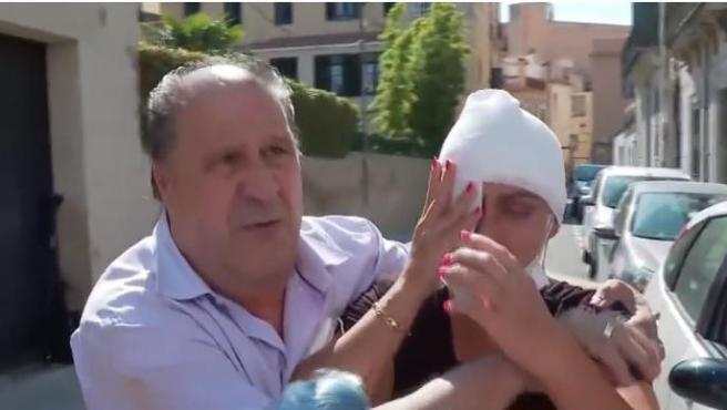 Ana Mari, la mujer atacada con sosa cáustica