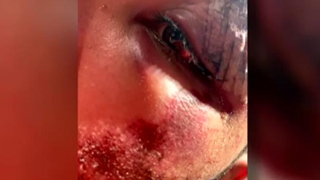 Fotografía del joven agredido en Hortaleza