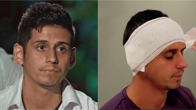 Christofer Guzmán se opera las orejas.
