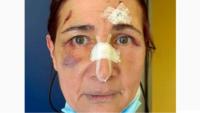 Stefania Buonpensiero, la mujer agredida en la ciudad italiana de Foggia.