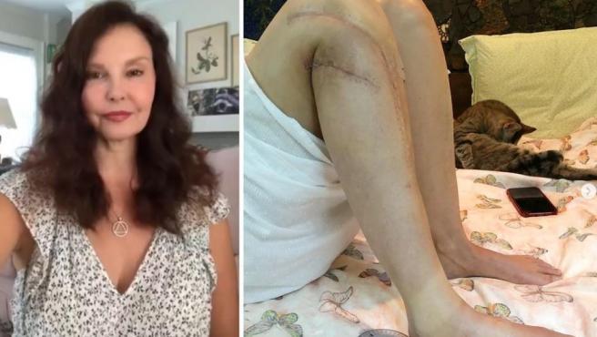 Ashley Judd y una imagen de su pierna derecha.
