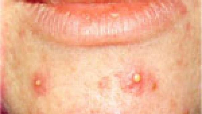 El acné produce inseguridad en los jóvenes (Foto: medic8.com)