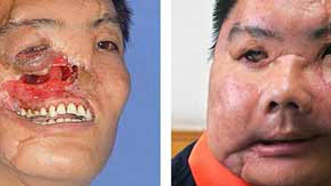 Li, antes y después del trasplante de cara que le ha sido practicado en la ciudad china de Xian.(China Daily / Reuters)