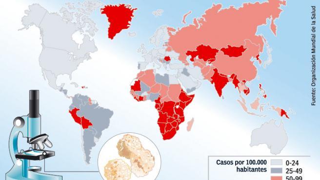 Mapa mundi de la tuberculosis