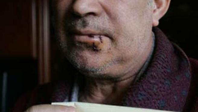 El árbitro, Vicente García Utiel, tuvo que ser atendido en el hospital. (JORGE PARÍS)