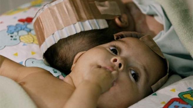 Mariana Rodriguez, unida por la cabeza a su hermana Sofía, momentos antes de la operación (Foto: Reuters)