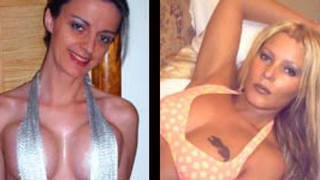 ¿Cuánto cuesta para un trabajo de senos?