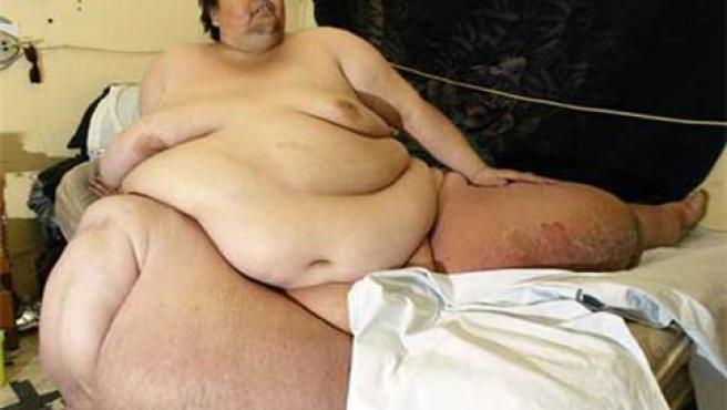 Manuel Uribe perdió más de 200 kilos tras una operación de reducción de estómago.