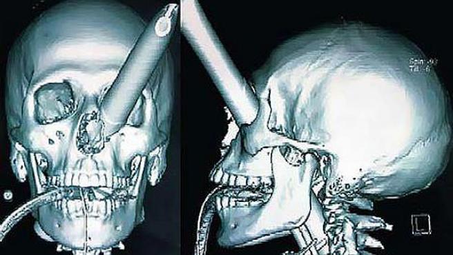 En la radiografía se pueden ver los daños producidos por la pata de la silla en el rostro del agredido. (THE AGE)