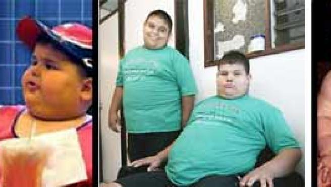 Obesidad infantil, uno de los problemas del siglo XXI.