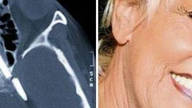 A la izquierda, la imagen del lápiz en la cabeza de Margret Wegner que posa, sonriente, a la derecha. (THE BILD)