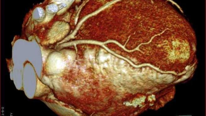 Fotografía tridimensional del interior del cuerpo humano.
