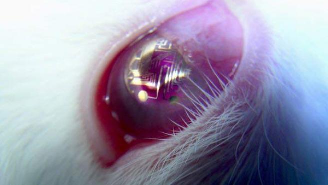 Imagen de una de las lentillas con circuitos siendo probada en un conejo por los investigadores.