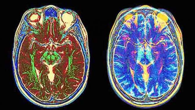 Un escaner MRI muestra las imágenes de las partes de un cerebro. (THE GUARDIAN )
