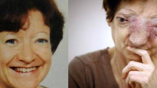 Chantal, antes y después de que se le desarrollase el tumor.