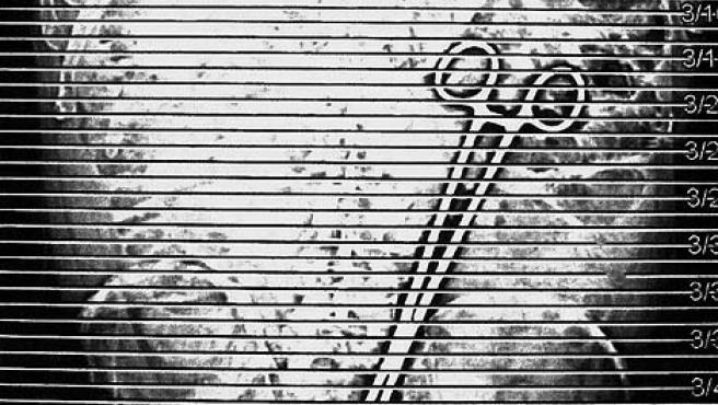 Las pinzas, vistas a través de una radiografía. (DAILY MAIL)