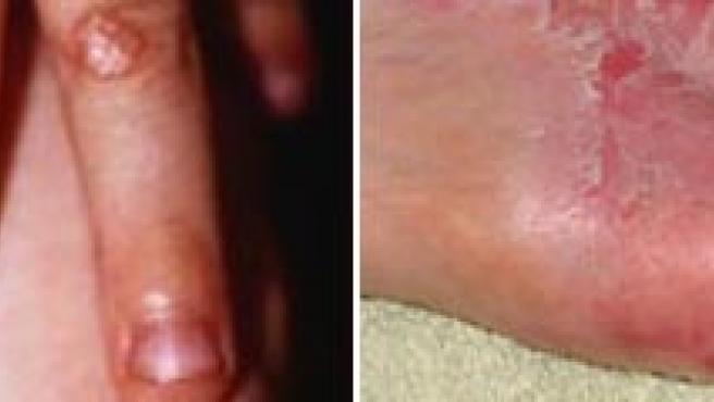 Lesiones cutáneas en las manos producidas por esta patología. (ARCHIVO)