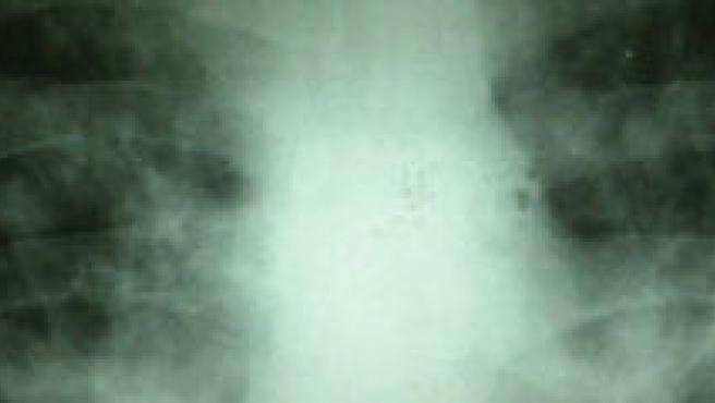 Las células pulmonares de un fumador generan menos proteína FANCD2.
