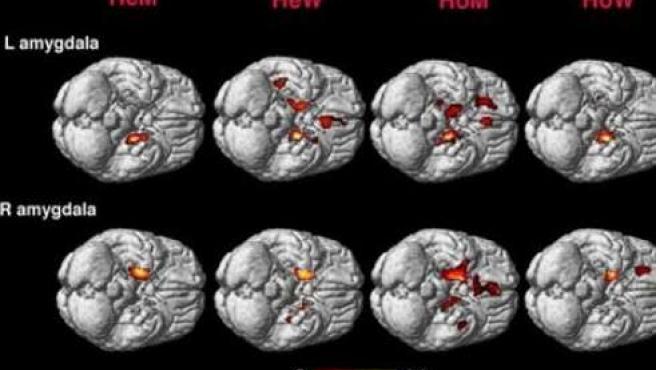 Diferencias entre el cerebro de personas homosexuales y heterosexuales (Foto: PNAS).