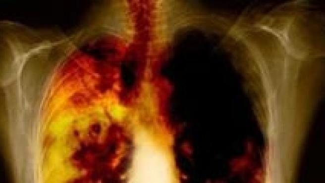 Los cromosomas tienen mucho que ver con el cáncer de pulmón.