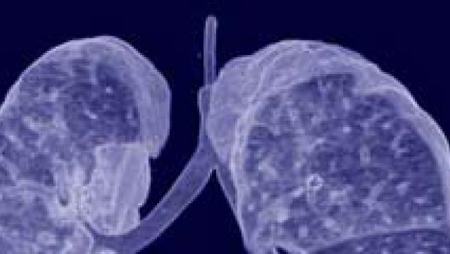 Las investigaciones podrían contribuir al desarrollo de tratamientos más eficaces. (FOTO: ARCHIVO)