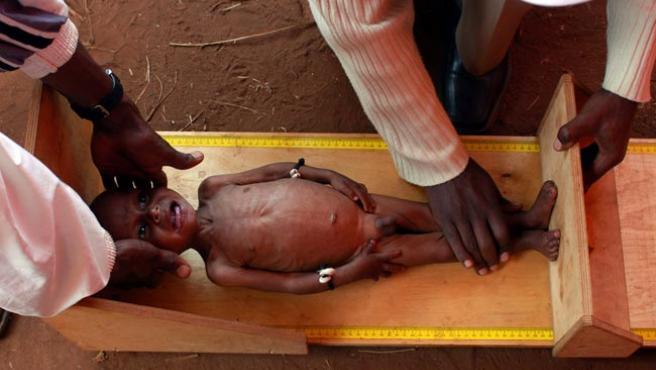 Un niño desnutrido es medido en el centro sanitario de Derara, en Boricha Woreda, Etiopía. (ARCHIVO)