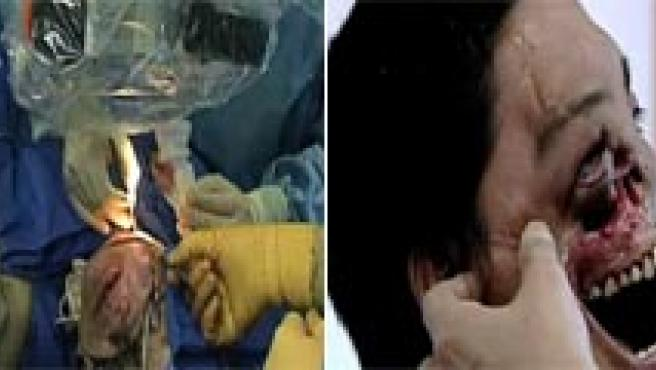 Diferencias secuencias de la preparación, la operación y los resultados del trasplante de cara de Li Gouxing.