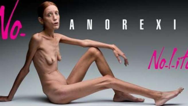 Una de las polémicas fotos de Oliviero Toscani con las que trató de llamar la atención hacia la anorexia en 2007