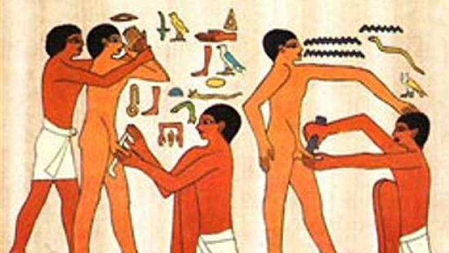 La circuncisión, según una muestra de arte egipcio.