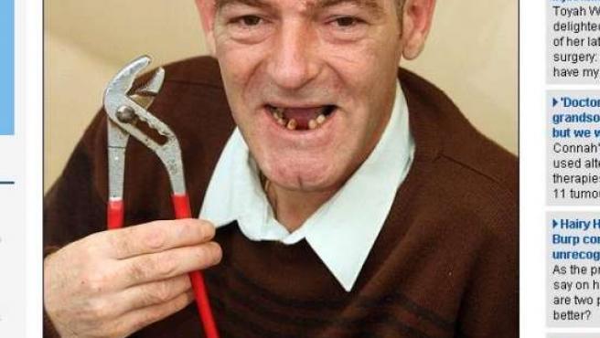 Ian Boynton se ha arrancado los dientes que le dolían. (Daily Mail)