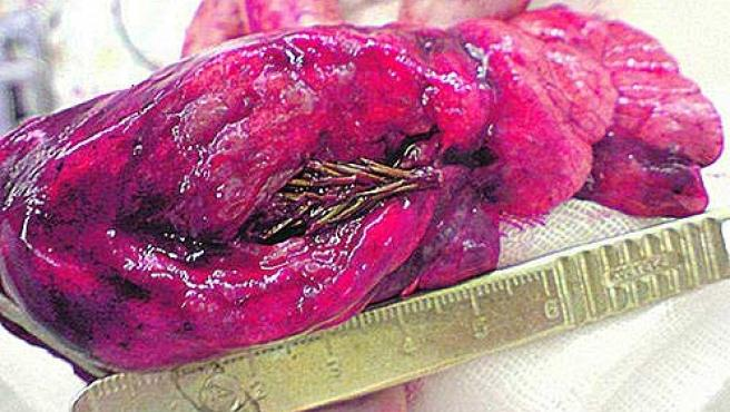 La rama de abeto, en el pulmón de Artyom Sidorkin.