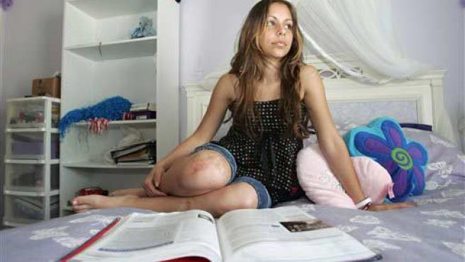 Una joven sentada en una cama muestra una cicatriz en su rodilla derecha.