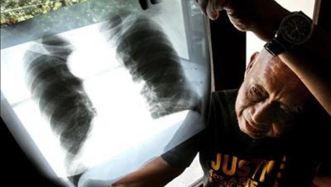 El contacto con el amianto puede degenerar en cáncer de pulmón. En la imagen, radiografía de unos pulmones enfermos.