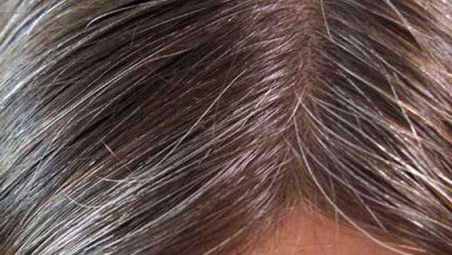 Los melanocitos son las células que dan el clor al cabello.
